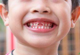 تاثیر مواد قندی بر پوسیدگی دندان