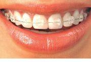 بیماری های کلیدی دندان