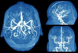 خطرات جانبی آنوریسم مغزی را بشناسید