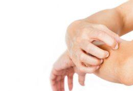 مبتلایان به آلرژی های پوستی بخوانند