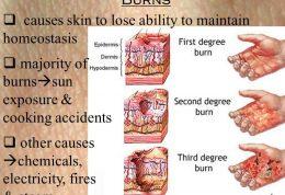 بیماری صرع و تهدید سلامت جسمی مبتلایان