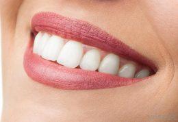 پیامدهای منفی سفید کردن دندان ها