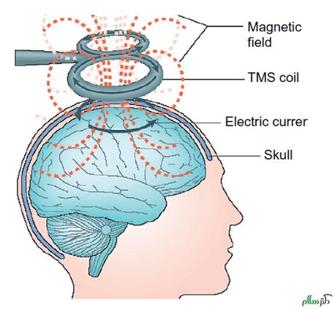 تاثیر شوک الکتریکی بر بیماران افسرده