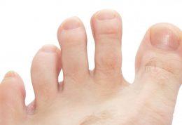 بانیونِت یا پینه انگشت خیاطان ؛ از تشخیص تا درمان