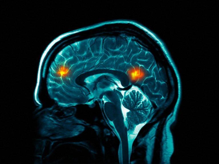 جدیدترین اطلاعات از اسکن مغز انسان