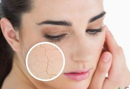 درمان خشکی پوست فصلی یا خارش زمستانی