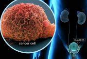 این موارد نشان از سرطان مثانه دارند