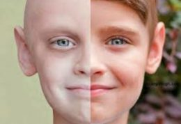 حقایقی دردناک درباره کودکان سرطانی