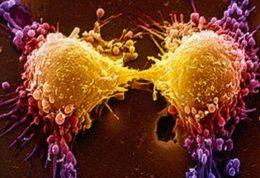 آیا نظر دوم برای بیماران مبتلا به سرطان پروستات وجود دارد؟