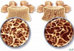 کشف راهکار هایی جدید برای ترمیم استخوان ها