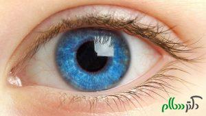 پزشکان با استفاده از آیپد تنبلی چشم را درمان می کنند