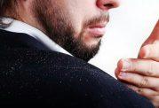 10 کلید طلایی برای رهایی از شوره سر