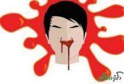 علل خون دماغ شدن کدامند؟