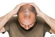 مردان بخوانند! درمان قطعی ریزش مو برای آقایان