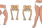 پیامدهای نرمی استخوان در خردسالان