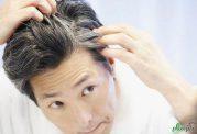 با این مواد غذایی از سفید شدن موهایتان جلوگیری کنید