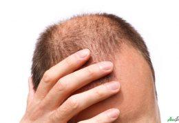 روش های موثر برای درمان ریزش مو در مردان