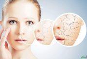 درمان خشکی پوست با شروع فصل سرما