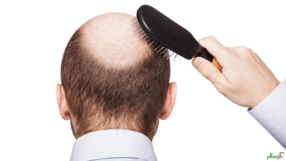 ریزش مو ارثی