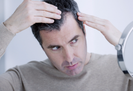 روش های مهم برای مهار ریزش مو