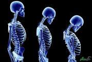 توربوتراپی روشی برای درمان پوکی استخوان
