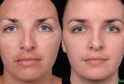 دلایل دو رنگ شدن پوست صورت را بشناسیم