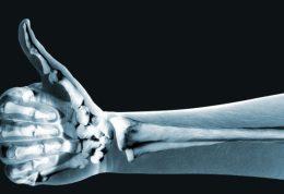 تاثیرات مختلف امراض قندی بر سلامت استخوان