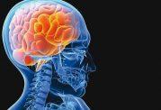 افزایش سکته مغزی در بین جوانان
