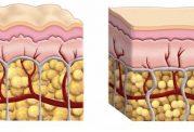 آیا با لاغر شدن می توان  سلولیت را از بین برد؟
