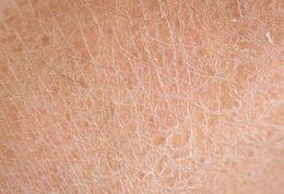 ۵ غذای فوق العاده مفید برای درمان خشکی پوست