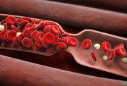 6 علامت که ممکن است یک لخته خون داشته باشید