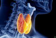 8 چیزی که شما باید در مورد بیماری هاشیموتو بدانید