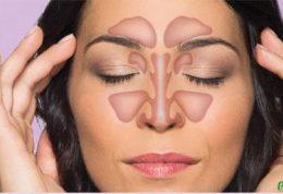 تاثیر سینوزیت بر ایجاد سردرد میگرنی