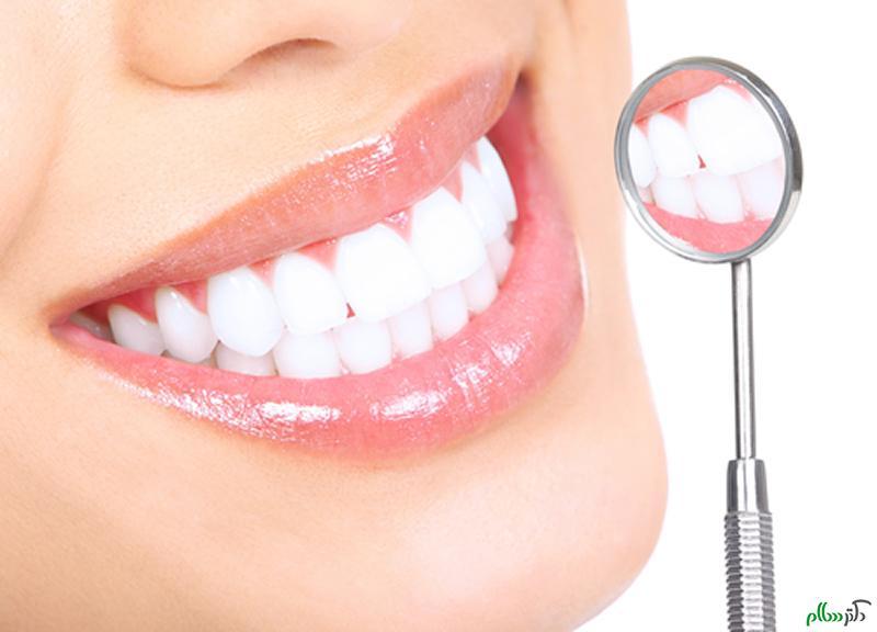 کدام دندان ها نیاز به لمینت دارند