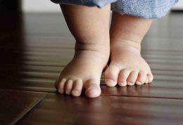 ابتلا به پای پرانتزی در کودکی