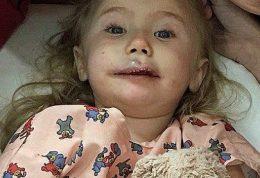 تومور سرطانی خوش خیم و دختر سه ساله