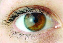 3 بیماری چشم+راه درمان