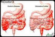 نکات تغذیه ای مهم برای مبتلایان به بیماری کرون