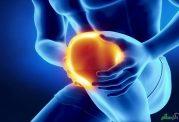 از علل کبودی استخوان و بافت ها چه می دانید؟