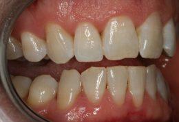 توصیه هایی برای استفاده از پروتز دندان