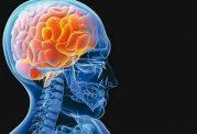 درمان بیماری های مغزی با استفاده از رژیم درمانی