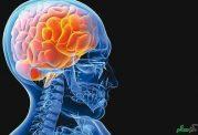 افزایش خطر سکته مغزی در جوانان