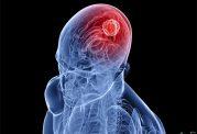 افراد با تحصیلات عالی بیشتر در معرض تومورهای مغزی قرار دارند
