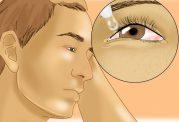 سلول درمانی برای بازیابی بینایی