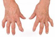 راهکارهایی برای کاهش درد بیماری آرتریت روماتوئید در محل کار