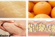 مواد غذایی مفید برای از بین بردن سلولیت