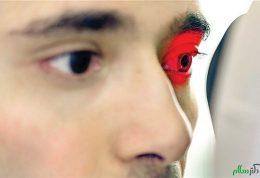 شناخت انواع بیماری های مربوط به چشم(قسمت اول)