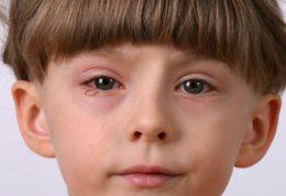 مقابله با ضعف بینایی خردسالان