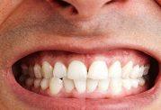 به هم ساییدن دندان ها یا دندان قروچه را جدی بگیرید