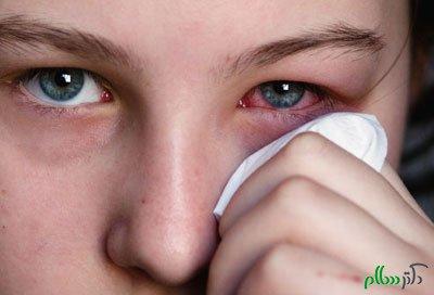 مقابله با عفونت و بیماری های چشمی